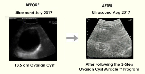 Ovarian Cyst Miracle™ - OFFICIAL WEBSITE - Heal Ovarian Cysts and PCOS Naturally